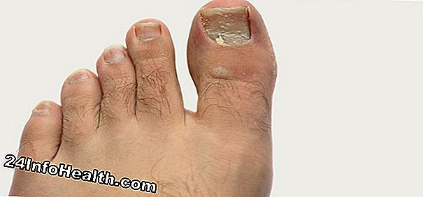 Wellness: 10 Home Remedies for Ingrown Toenails