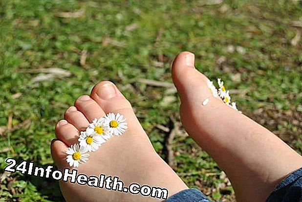 Wellness: 15 Home Remedies for Calluses og Corns