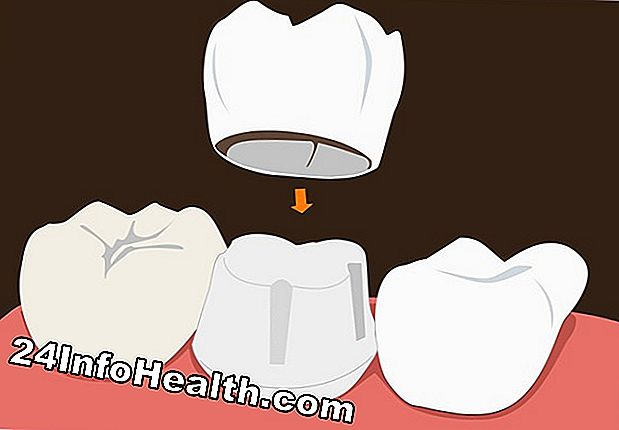 Wellness: Dental Crowns