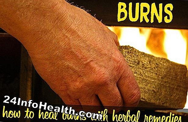 Wellness: Herbal Remedies for Burns