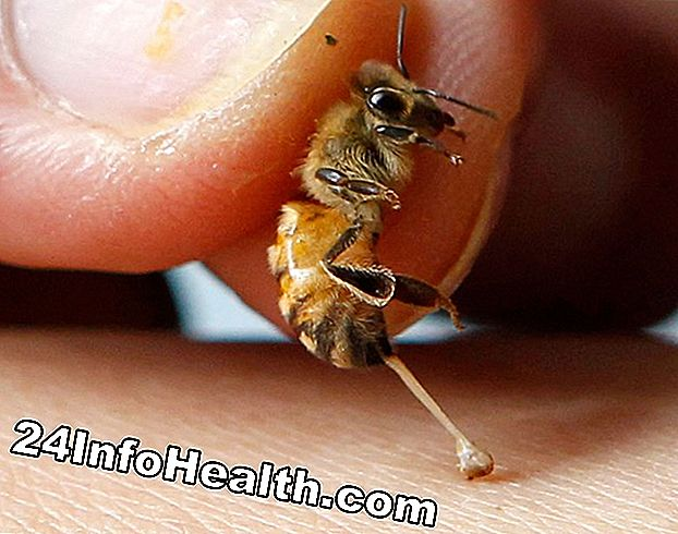 Bee Sting Therapy: Chữa bệnh từ Hive