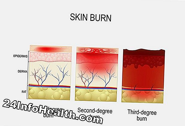 Burns: Types and Treatments