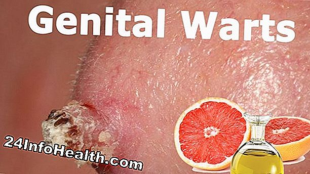 Kesihatan: 24 Home Remedies for Warts