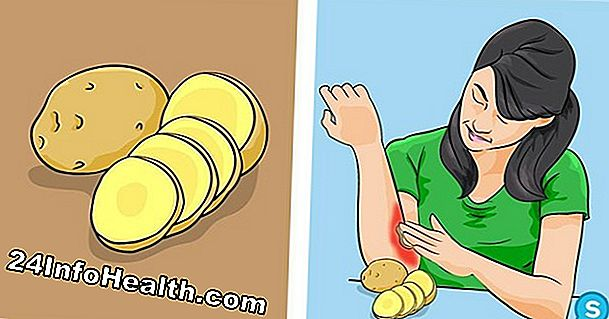 Kesihatan: 8 Home Remedies for Burns
