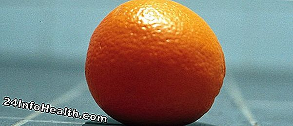 Wellness: Aromaterapi: Orange