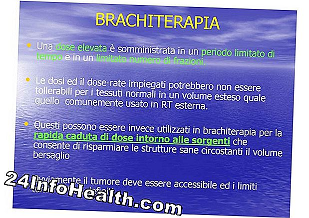 Brachiterapia e fertilità