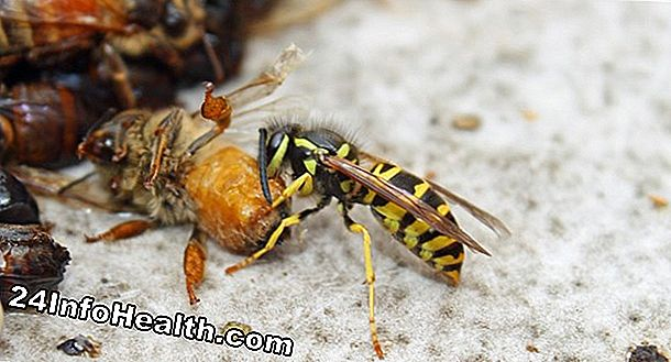 Ubat: The Buzz on Sting Insect