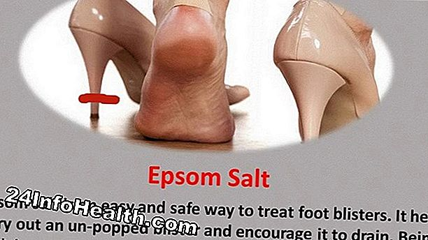 Kesihatan: 19 Home Remedies for Blisters