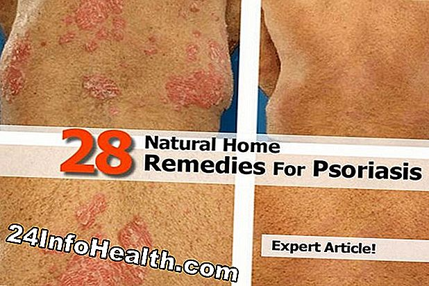 28 Home Remedies for Psoriasis