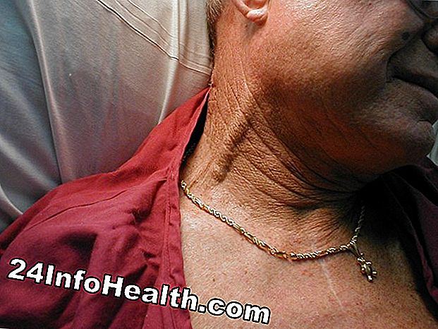 Sjukdomar och villkor: Jugular Venous Distension