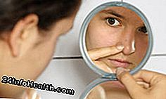 Acne Remedies: Hurtige fakta