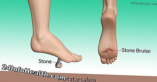 Malattie e condizioni: Bump on Outside Edge of Big Toe Sintomo, cause e domande