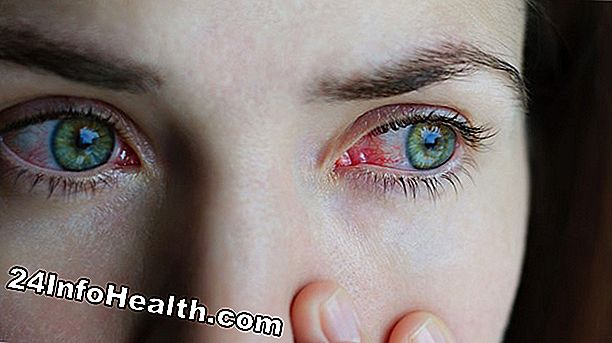 Infecção do Sinus, Olho Rosa, Alergias: Top 9 Causas da Descarga Ocular